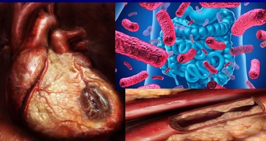 Escherichia e infarto
